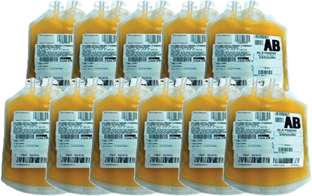 10-12 units of plasma, 250mL per bag